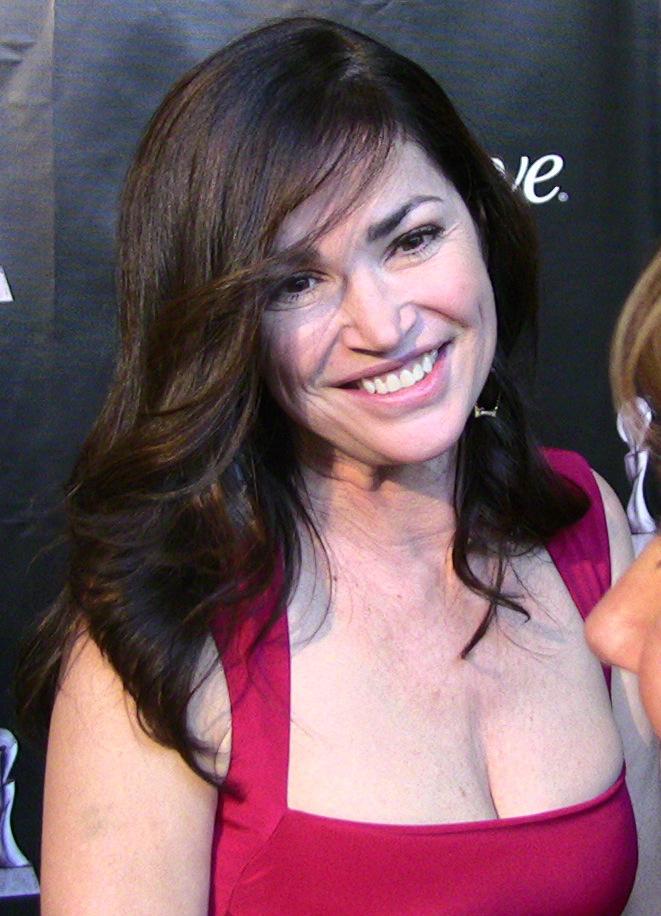 Kim Delaney Botox Plastic Surgery