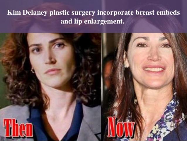 Kim Delaney Lips Plastic Surgery