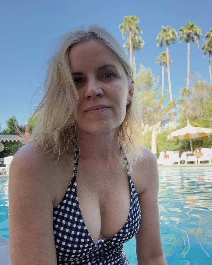 Kim Dickens Boob Job Plastic Surgery