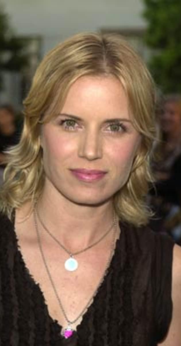 Kim Dickens Botox Plastic Surgery