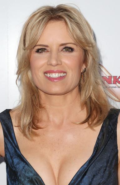Kim Dickens Lips Plastic Surgery