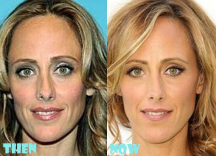 Kim Raver Nose Job Plastic Surgery