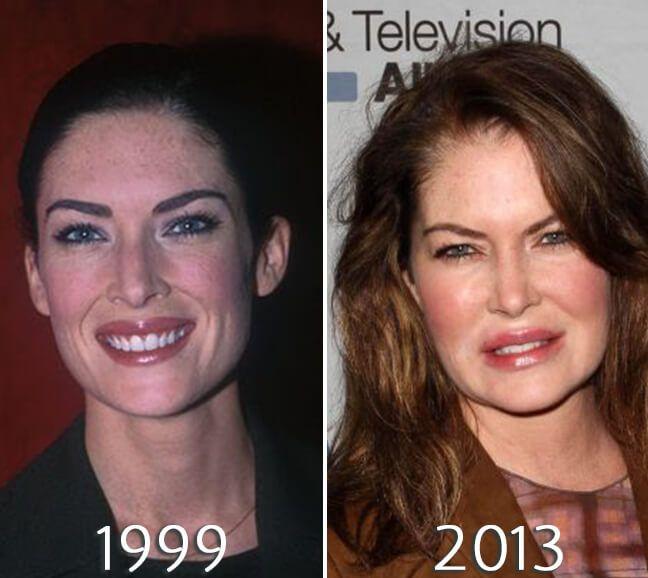 Lara Flynn Boyle Lips Plastic Surgery