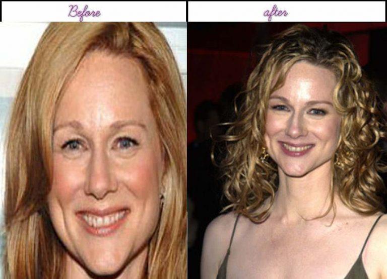 Laura Linney Nose Job Plastic Surgery