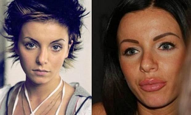 Lena Katina Nose Job Plastic Surgery