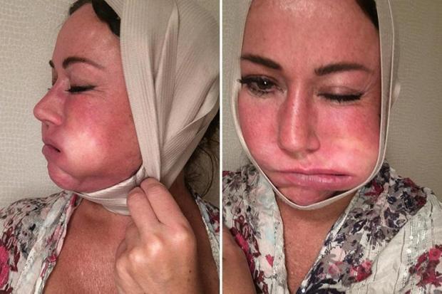 Lisa Appleton Botox Plastic Surgery
