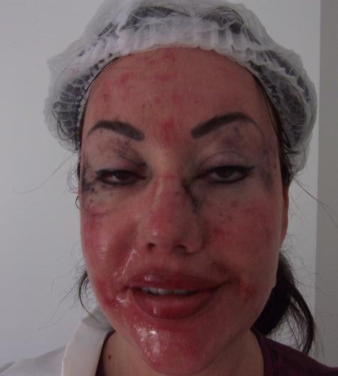 Lisa Appleton Lips Plastic Surgery