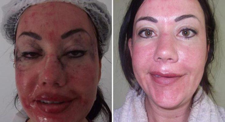 Lisa Appleton Plastic Surgery Nose Job Boob Job Botox Lips