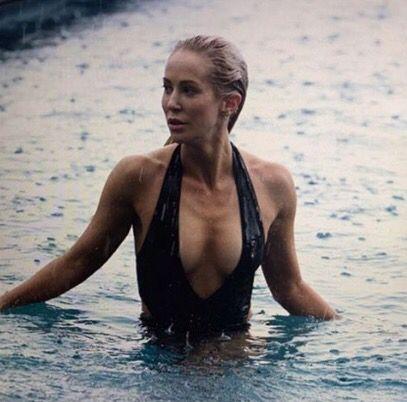 Louise Linton Boob Job Plastic Surgery