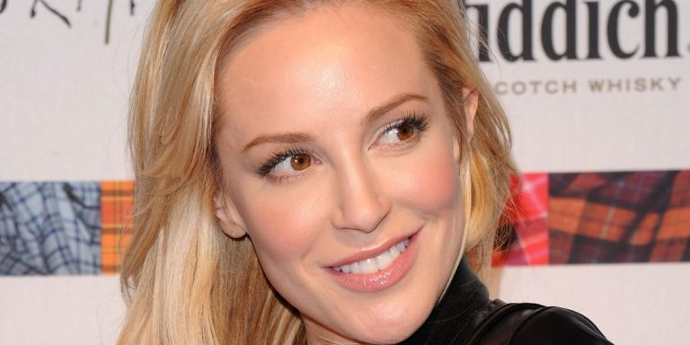 Louise Linton Lips Plastic Surgery