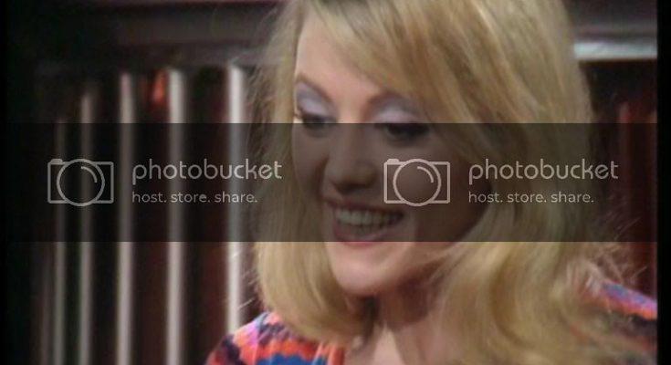 Margaret Nolan Plastic Surgery Nose Job Boob Job Botox Lips