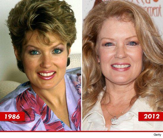 Mary Hart Lips Plastic Surgery