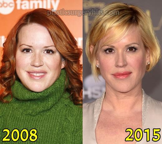 Molly McGrath Nose Job Plastic Surgery