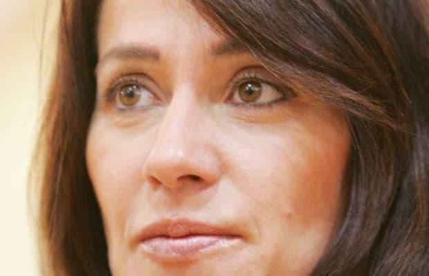 Nadia Comaneci Botox Plastic Surgery