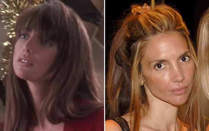 Nicolette Scorsese Lips Plastic Surgery