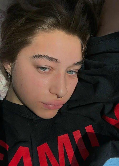 Odessa Adlon Lips Plastic Surgery