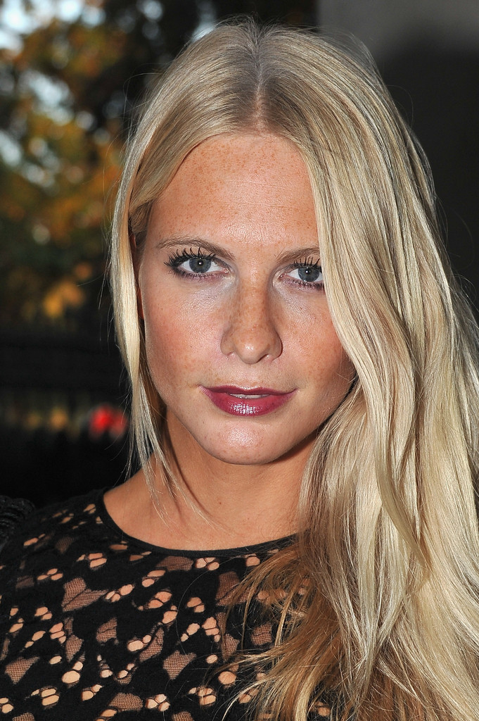 Poppy Delevingne Lips Plastic Surgery