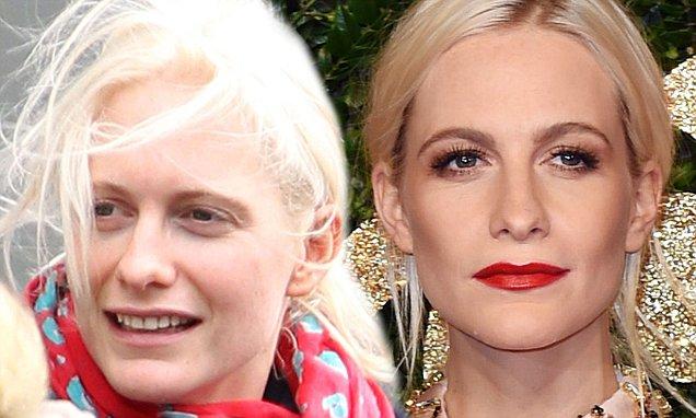 Poppy Delevingne Nose Job Plastic Surgery