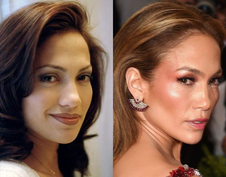 Rachel Boston Nose Job Plastic Surgery