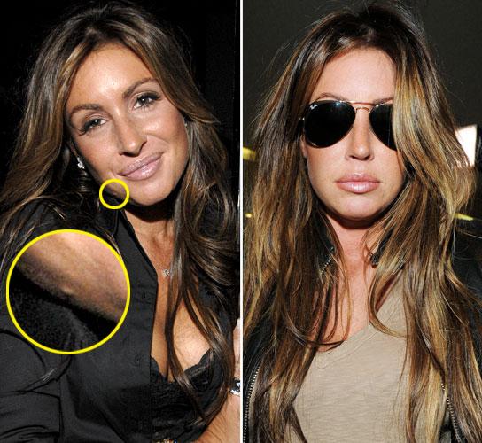 Rachel Uchitel Botox Plastic Surgery