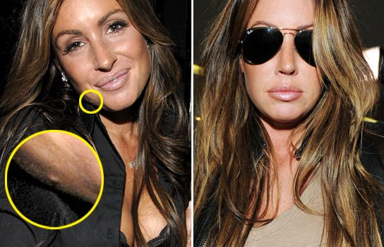 Rachel Uchitel Nose Job Plastic Surgery