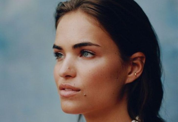 Robin Holzken Lips Plastic Surgery
