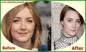 Saoirse Ronan Nose Job Plastic Surgery