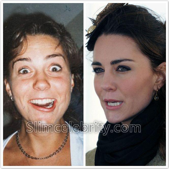 Sarah Stephens Nose Job Plastic Surgery