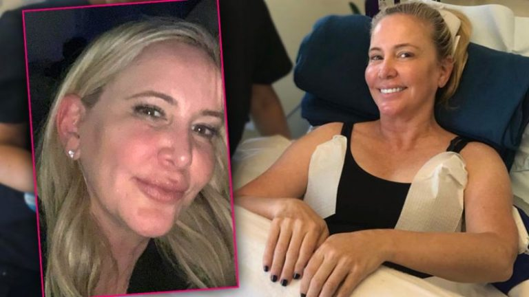 Shannon Beador Lips Plastic Surgery