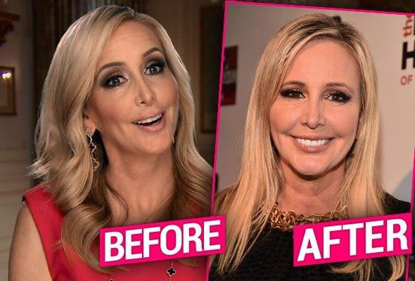 Shannon Beador Nose Job Plastic Surgery
