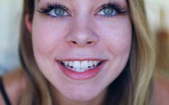 Sierra Furtado Plastic Surgery Nose Job Boob Job Botox Lips