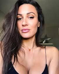 Sitara Hewitt Lips Plastic Surgery