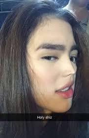 Sofia Andres Nose Job Plastic Surgery