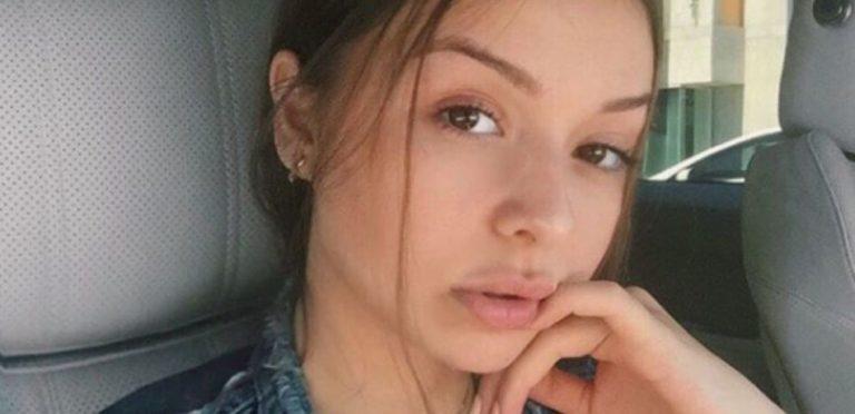 Sophie Mudd Lips Plastic Surgery
