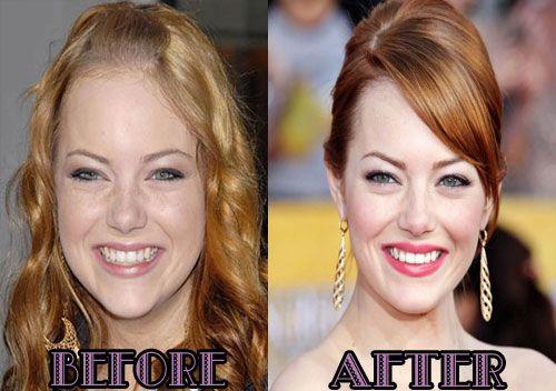 Sophie Simmons Nose Job Plastic Surgery