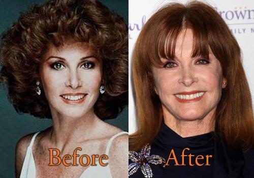 Stefanie Powers Nose Job Plastic Surgery