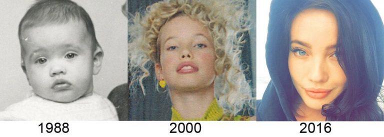 Stephanie Corneliussen Lips Plastic Surgery