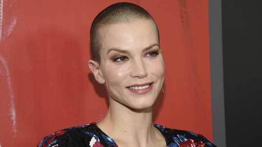 Sylvia Hoeks Plastic Surgery Nose Job Boob Job Botox Lips