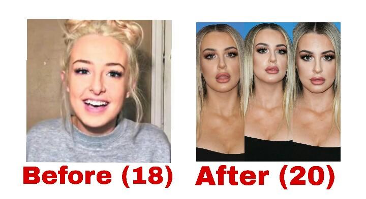 Tana Mongeau Nose Job Plastic Surgery