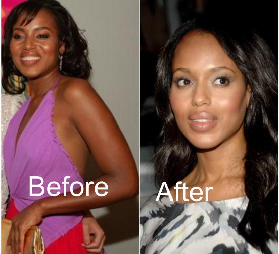 Tatyana Ali Nose Job Plastic Surgery