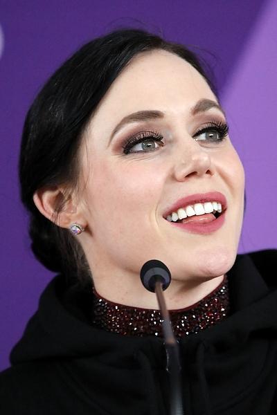 Tessa Virtue Botox Plastic Surgery
