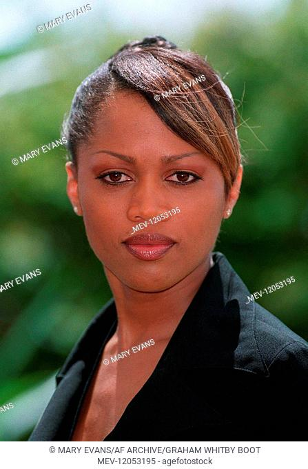 Theresa Randle Lips Plastic Surgery