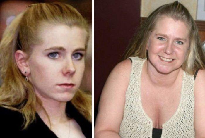 Tonya Harding Nose Job Plastic Surgery