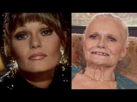 Valerie Perrine Botox Plastic Surgery