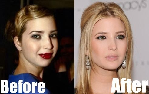 Vanessa Trump Nose Job Plastic Surgery