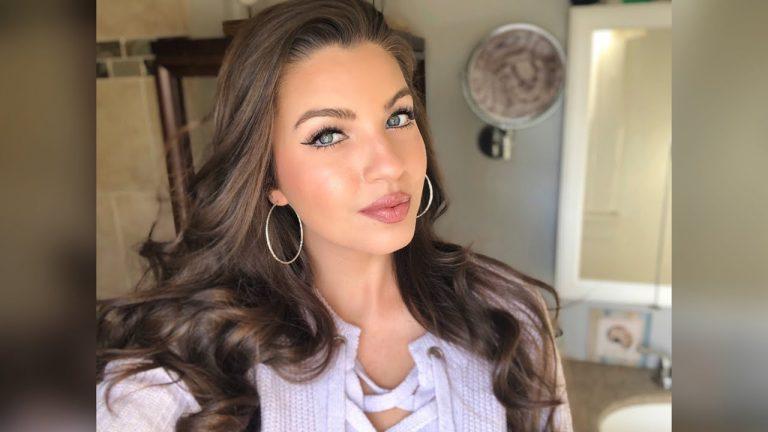 Angela Amezcua Botox Nose Job Lips Plastic Surgery Rumors