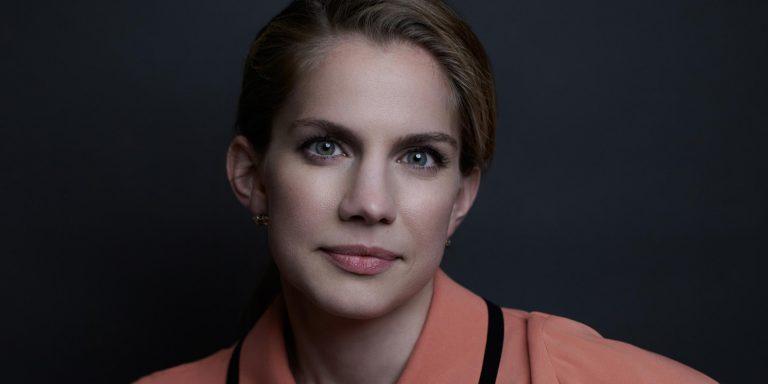 Anna Chlumsky Botox Nose Job Lips Plastic Surgery Rumors