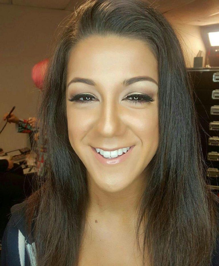 Bayley Botox Nose Job Lips Plastic Surgery Rumors