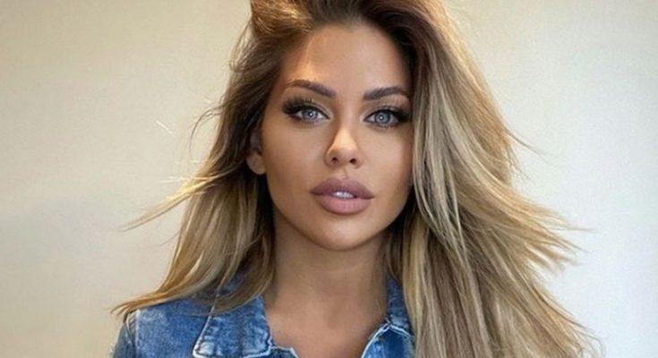 Bianca Gascoigne Plastic Surgery Nose Job Boob Job Botox Lips