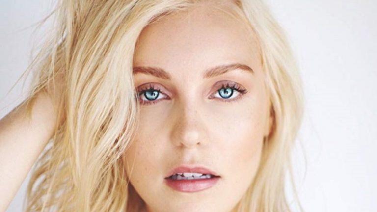 Breanne Hill Botox Nose Job Lips Plastic Surgery Rumors